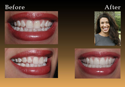 Before and after smile fix